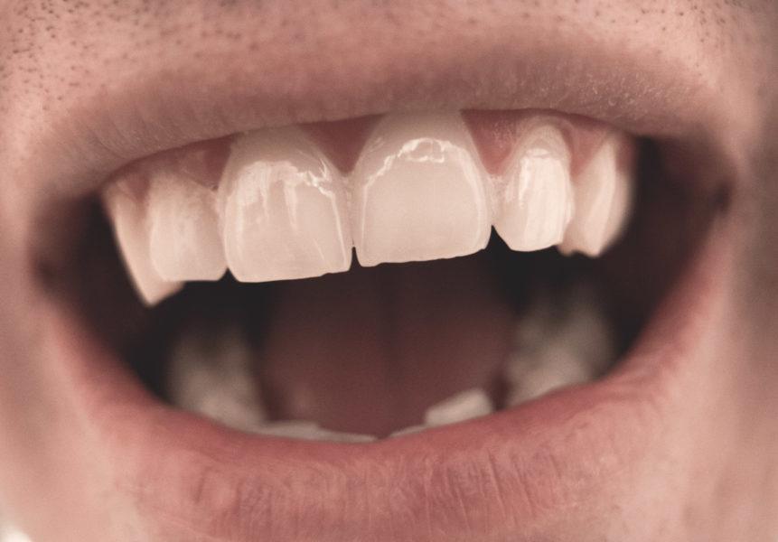 Welke middelen helpen tegen een droge mond?